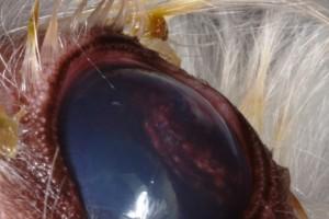 Adénome des corps ciliaire