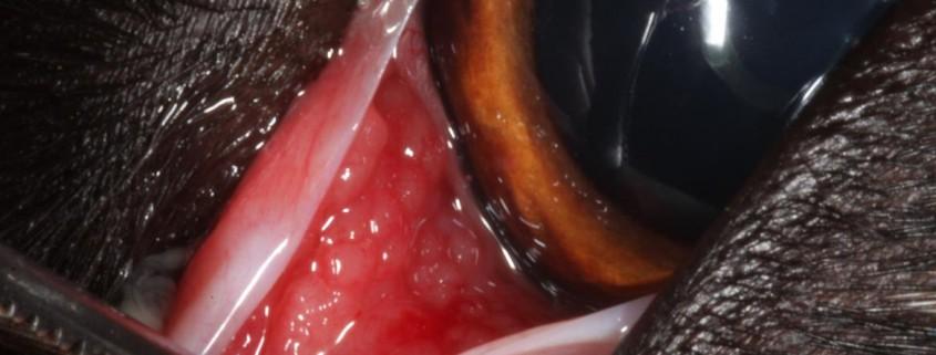 Une chienne croisée beauceron/border collie de 3 ans est présentée à la consultation pour un épiphora bilatéral évoluant depuis plusieurs semaines. Plusieurs traitements à base d'antibiotiques topiques associés à des corticostéroïdes locaux ont été essayés sans succès par un confrère.  A l'examen direct, on note un écoulement muqueux au coin des deux yeux. Il n'y pas de blépharospasme. Le test lacrymal (Test au rouge phénol) est normal pour les deux yeux. L'examen des conjonctives révèle un chémosis léger mais une hyperhémie de la face bulbaire de la membrane nictitante avec un aspect très « bosselé » concernant l'œil gauche.  Une cytologie oculaire est réalisée et révèle une infiltration importante de lymphocytes sans macrophages ni bactéries.  Il s'agît donc d'une conjonctivite folliculaire bilatérale, plus marquée à gauche.  Un traitement anti-inflammatoire associant de la triamcinolone par voie sous conjonctivale associée à une fluorométholone topique appliquée trois fois par jour est proposée. L'animal sera revu après 3 semaines de traitement, en cas de non guérison, un raclage folliculaire devra être réalisé.    Face orbitaire de la troisième paupière de l'œil droit    Face orbitaire de la troisième paupière de l'œil gauche, noter l'aspect bosselé des follicules lymphoïdes     Cytologie oculaire : abondance de lymphocytes  La conjonctivite folliculaire se développe secondairement à une stimulation antigénique chronique. Il n'y a pas de rapport avec une atteinte virale ou bactérienne. La plupart des follicules se forment sur la face bulbaire de la troisième paupière mais peuvent trouver leur place à d'autres endroits de la conjonctive. Il est fréquent d'observer une hyperhémie conjonctivale ainsi qu'une décharge muqueuse associée à la pathologie. Les chiens de moins de 18 mois représentent la plupart des cas observés. Le diagnostic est basé sur l'observation des signes cliniques. Les frottis conjonctivaux confirment le diagnostic en soulignant le caractère lymp