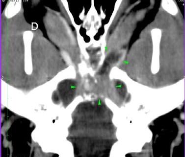 Scanner Méningiome cécité chien