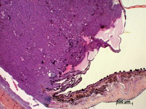 Histologie adénome des corps ciliaire
