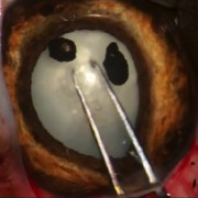chirurgie cataracte extracapsulaire